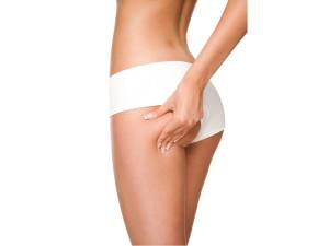Cavitación Estética es Eficaz para eliminar la celulitis