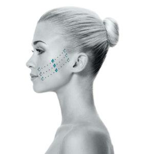 Non-invasive Beauty Trends  (en español debajo)